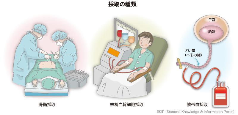 移植 造血 と は 幹細胞